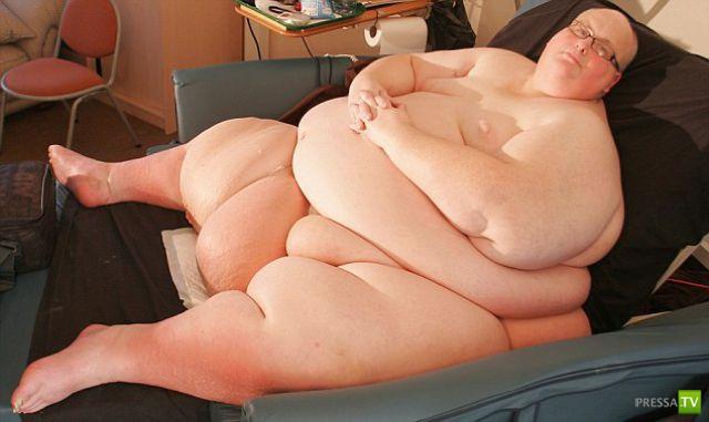 Пол Мейсон - самый толстый мужчина планеты похудел на 292 кг (12 фото)