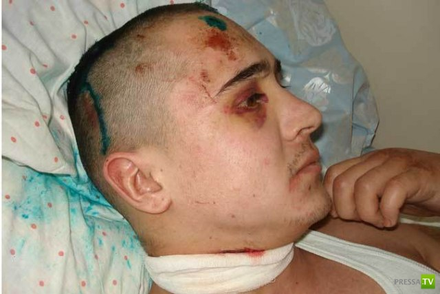В Башкирии двое подростков несколько часов пытались убить таксиста