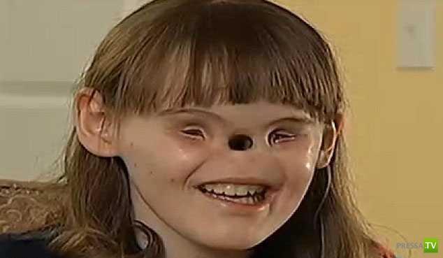 Кэссиди Хупер, без глаз и носа, ждет операцию... (фото + видео)