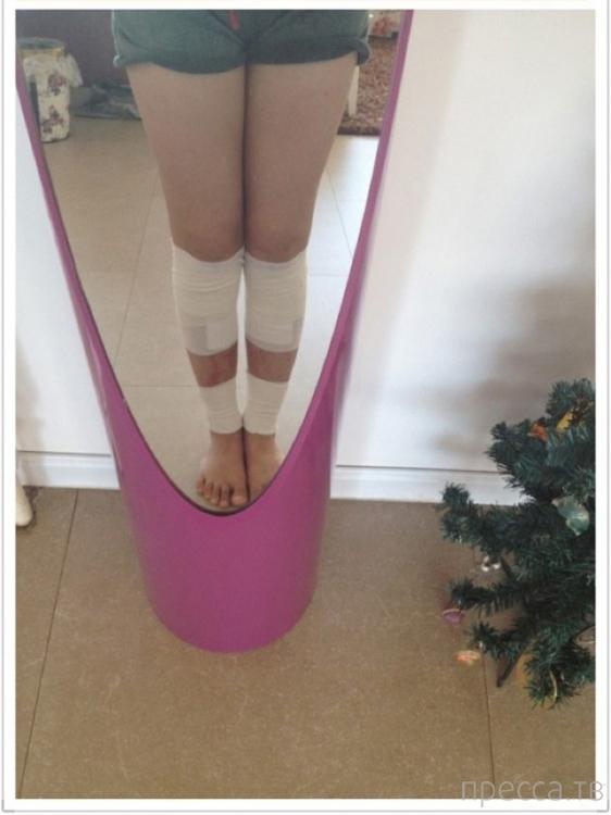 22-летняя Тань Ли сделала операцию по удлинению ног (8 фото)
