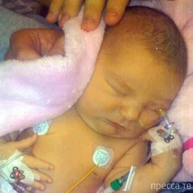 Девочка с половиной сердца прожила уже 9 месяцев вместо двух дней (4 фото)