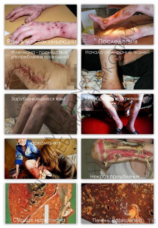 Наркотик «крокодил» - наркотик самоубийц...