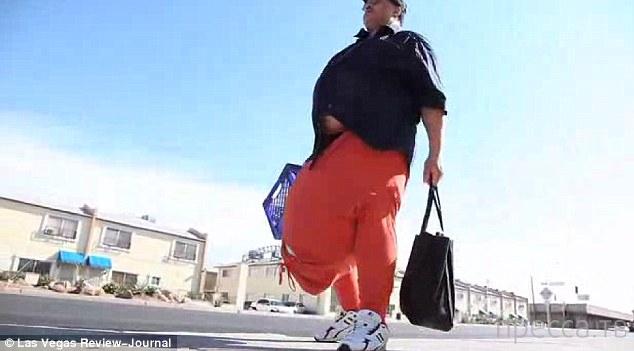 Мужчина остался недовольным после того, как у него  удалили 60-килограммовую мошонку (4 фото + видео))