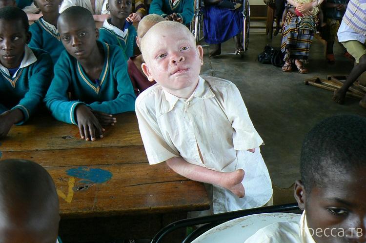 За что альбиносов в Танзании рубят на куски... Жесть!!! (11 фото)
