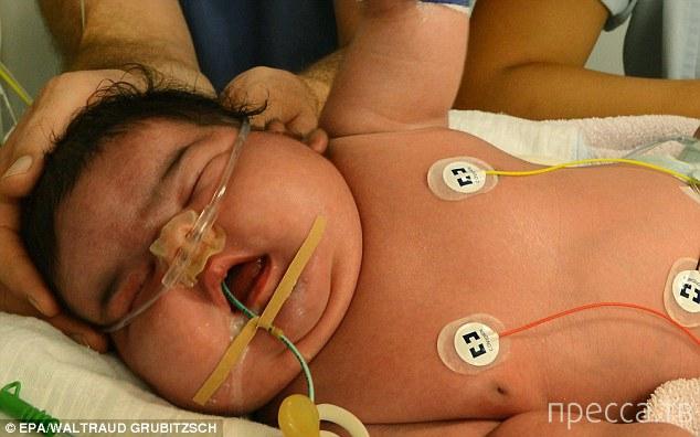 В Германии родился мальчик весом 6 кг 100 г (2 фото)