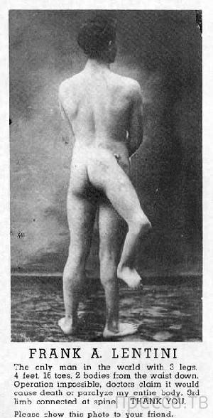 Трёхногий американец Фрэнк Лентини (4 фото)