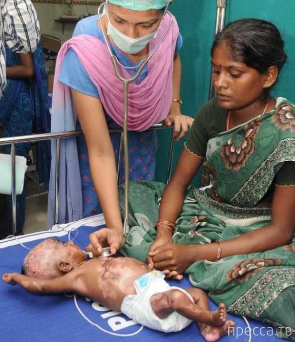 Самовозгорающийся младенец в Индии - загадка для врачей (2 фото)