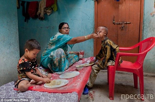 Очень редкое заболевание превратило мальчика в пенсионера (6 фото)