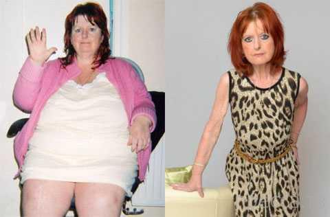 После операции на желудке 120-килограммовая толстуха превратилась в 10-летнего ребенка