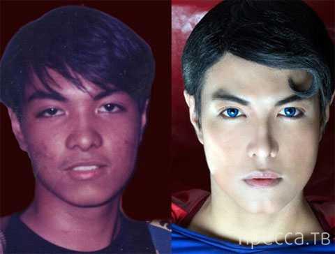 "Пластические хирурги сделали из филиппинца ""Супермена"" (7 фото)"