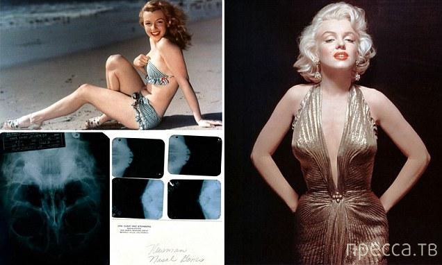 Документы, подтверждающие, что Мэрилин Монро делала пластические операции (4 фото)