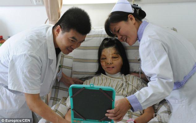 Китайские врачи сделали новое лицо девушке из ее груди (6 фото)