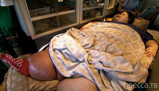 Похудела на 350 кг (7 фото)