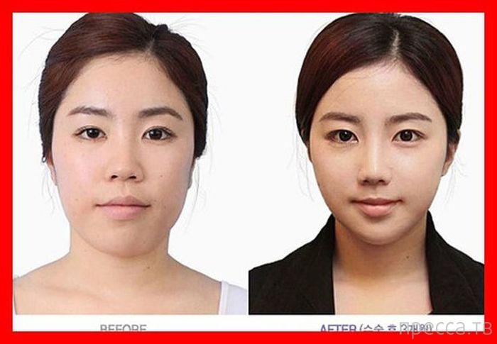 "Пластическая хирургия в стиле ""до и после"" (61 фото)"