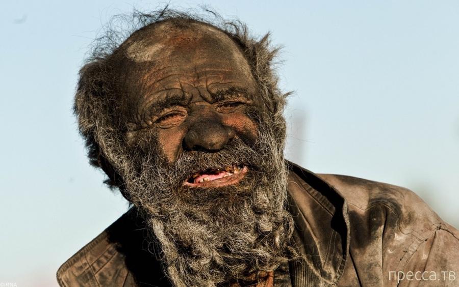 Как выглядит человек, который не мылся 60 лет ... (7 фото)