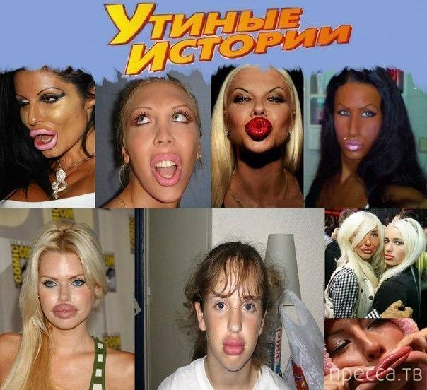 Утиные истории - Подборка фотографий с людьми, которые показывают свои губы (26 фото)