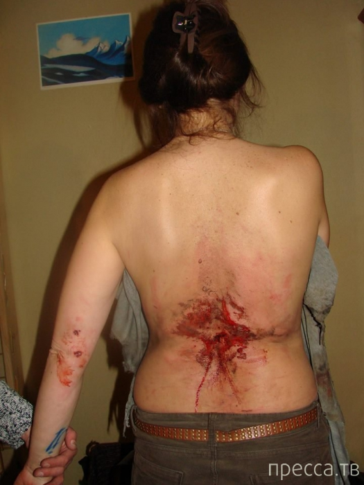 Украинская девушка пережила прямое попадание гранаты (4 фото)