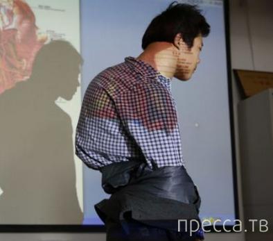Хирурги срезали со спины китайца 10-килограммовый 'рюкзак' (5 фото)