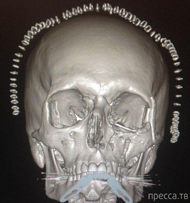 Необычная операция на черепе жертвы аварии (6 фото)