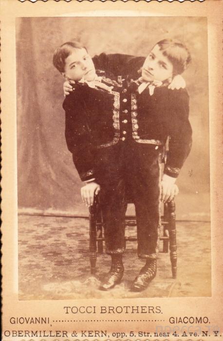 Топ 10: Истории знаменитых сиамских близнецов (10 фото)