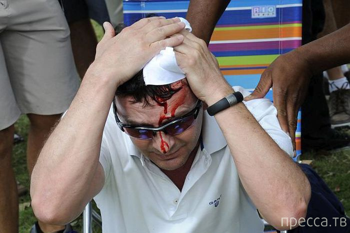 Тайгер Вудс оставил фанату два автографа - на перчатке и на голове (5 фото)