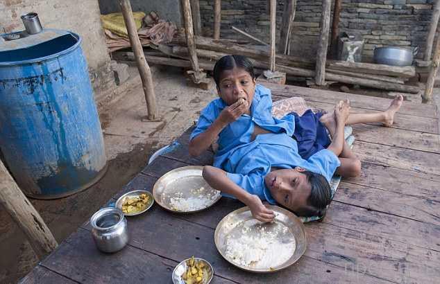 Сиамские близнецы - Шиванатх и Шиврам Саху в Индии стали новым божеством (5 фото)