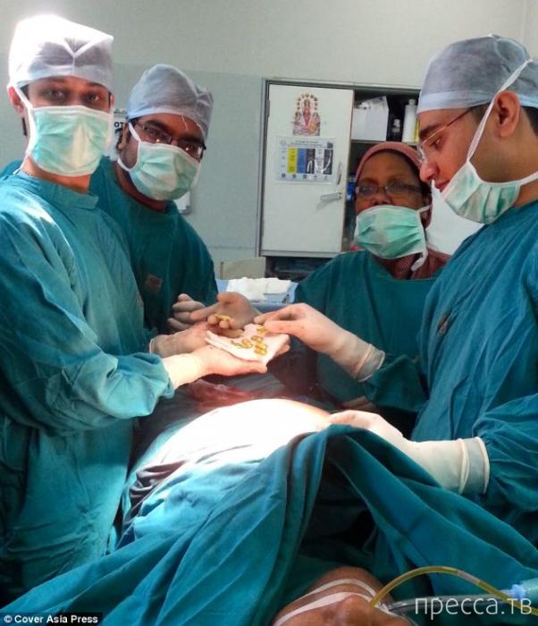 Золотые слитки обнаружили индийские хирурги в желудке бизнесмена (5 фото)