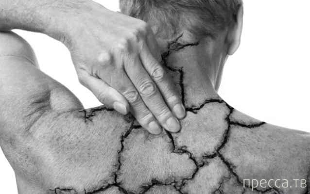 Топ 10: Самые странные факты о психическом здоровье (21 фото)