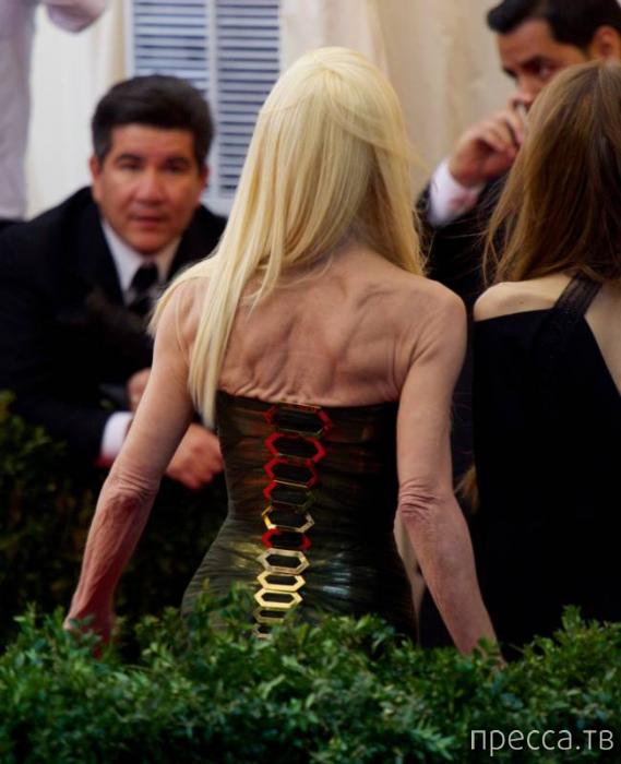 Донателла Версаче шокировала своим внешним видом гостей бала (13 фото)