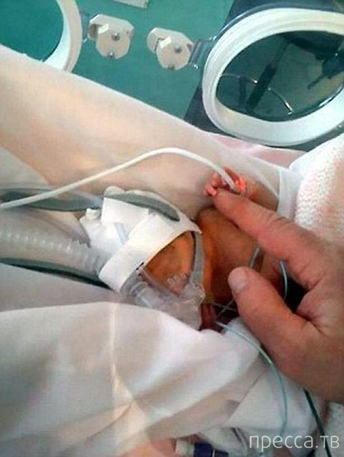 Врачи из Великобритании спасли 24-недельного ребенка (7 фото)