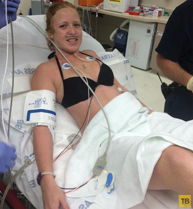 22-летняя девушка из Флориды чудом пережила нападение акулы (5 фото)