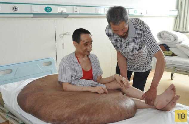 Китайские хирурги 16 часов срезали с мужчины 108-килограммовую родинку (8 фото)