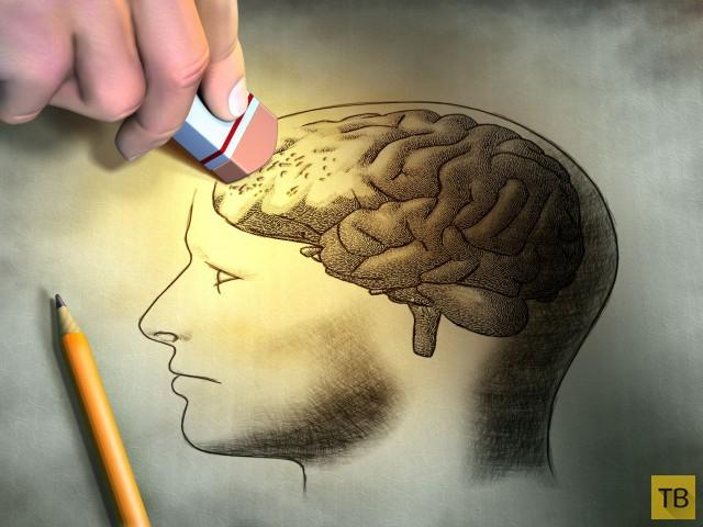 Топ 6: Величайшие загадки человеческого головного мозга (6 фото)
