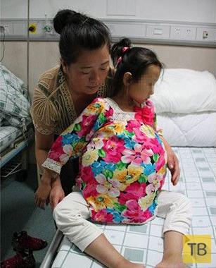 Врачи вырезали у девочки опухоль с два футбольных мяча (4 фото)