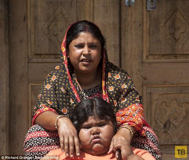 Девятилетняя 92-килограммовая школьница из Индии никак не может наесться (3 фото)