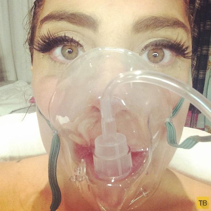 Леди Гага поделилась «сэлфи» с больничной койки (14 фото)