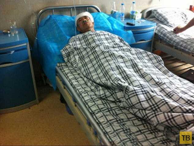 Проходивший под многоэтажкой китаец получил травму (5 фото)
