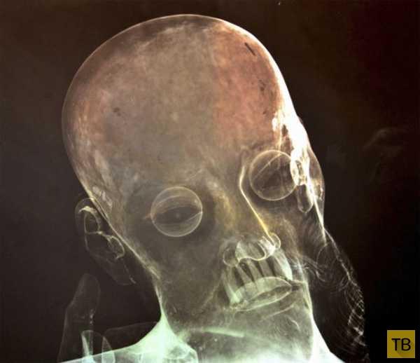 Человеческие зубы у 300-летней статуи Христа (2 фото)