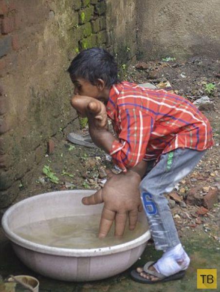 Индийские врачи пытаются помочь мальчику с гигантскими руками (17 фото)