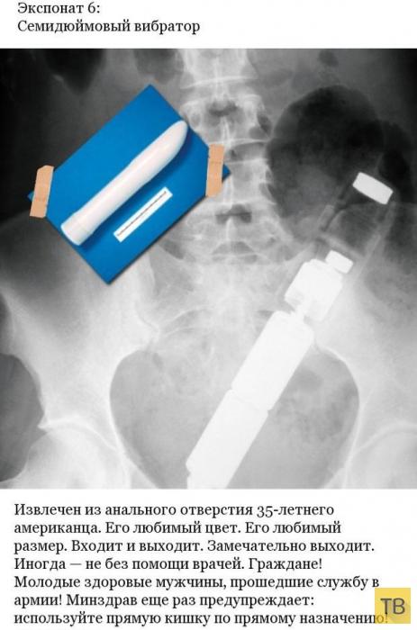 Странные вещи, оказавшиеся в телах пациентов (7 фото)