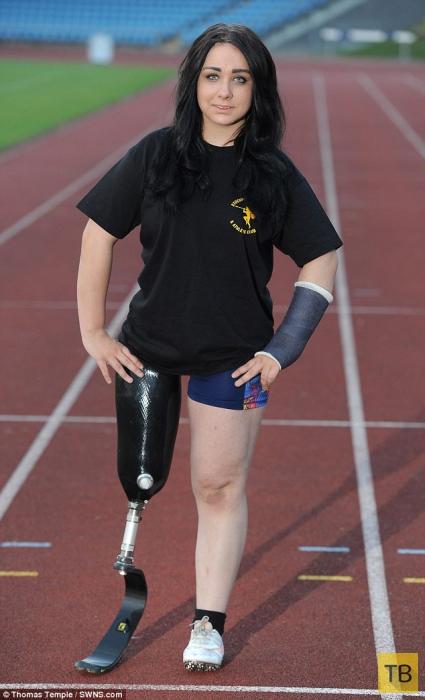 Школьница из Великобритании просит отрезать ей ногу (6 фото)