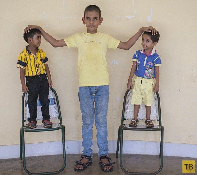 Самый большой младенец превратился в самого высокого ребенка (6 фото)