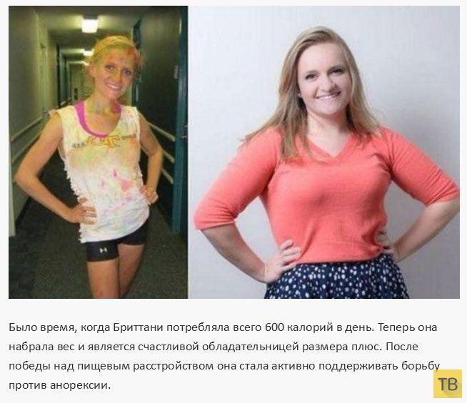 Болезнь сильное похудение
