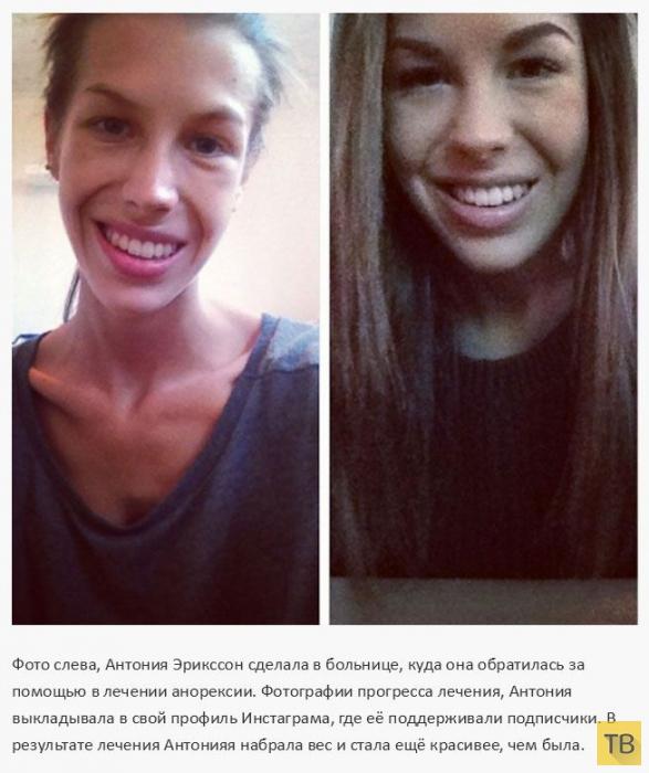 Девушки, победившие анорексию (14 фото)