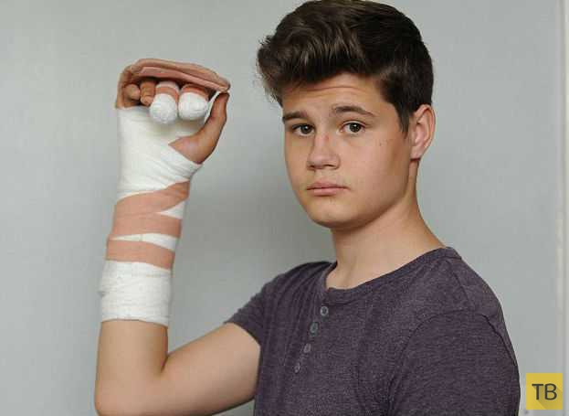 Фейерверк сломал подростку руку в семи местах (3 фото)