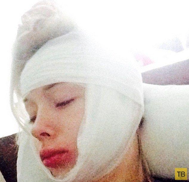 Дерзкие хулиганы напали на Валерию Лукьянову и сделали ей пластику лица (4 фото)