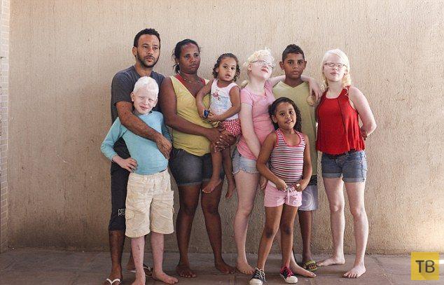 Бразильская мамаша родила тройню альбиносов (11 фото)