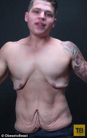 После похудения на 72,5 килограмма (13 фото)